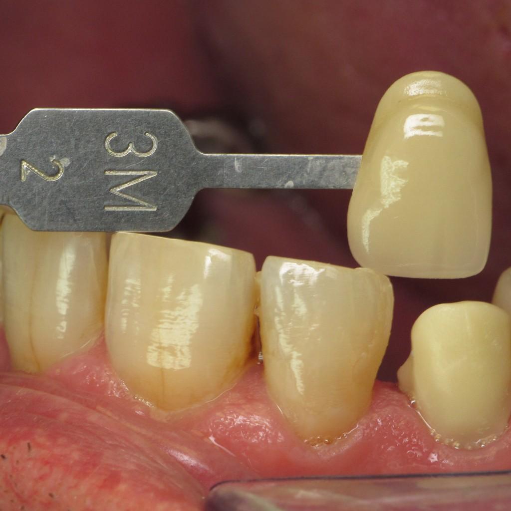 Laboratoire dentaire à Bordeaux, le Bouscat, implants, prothèses adjointe/conjointe/mixte/sur implant, traitements fichiers 3d STL...